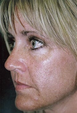 CO2 Skin Resurfacing Before