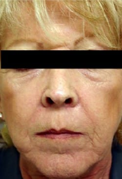 CO2 Skin Resurfacing After