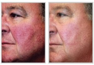 Rosacea Laser Treatment Before and After