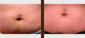 Stretch Mark Laser Treatment Before and After